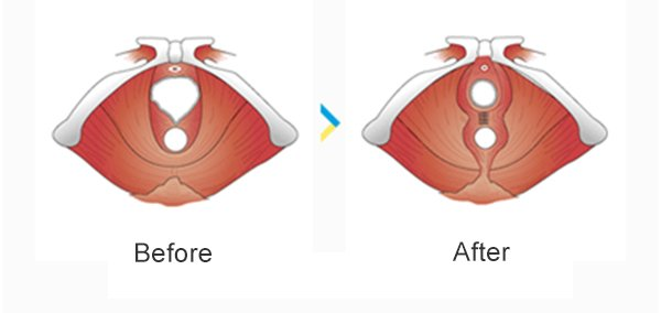 Hymenoplasty – Begin Again