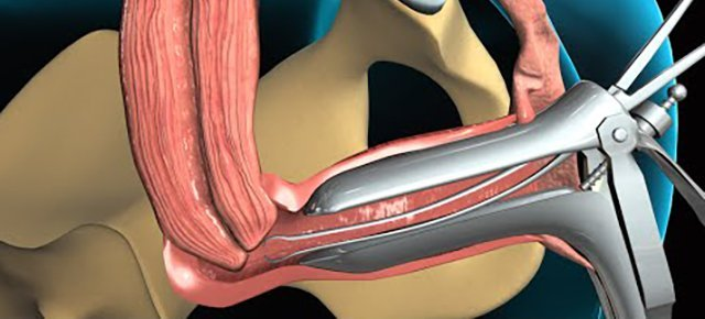 New York City Endometrial Biopsy