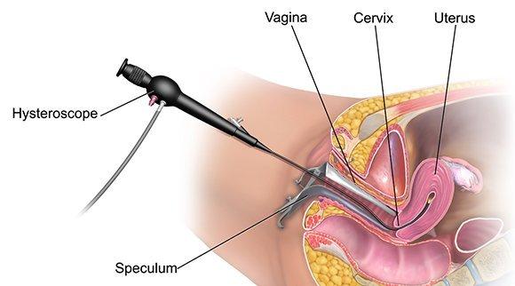 New York City Hysteroscopy Exams